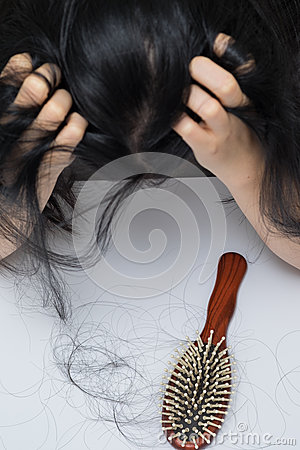 Free Woman Hair Loss Problem Stock Images - 57786934