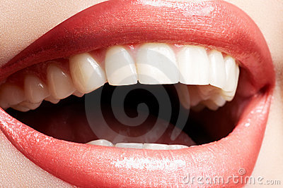Woman laughing, close-up of smile with white teeth