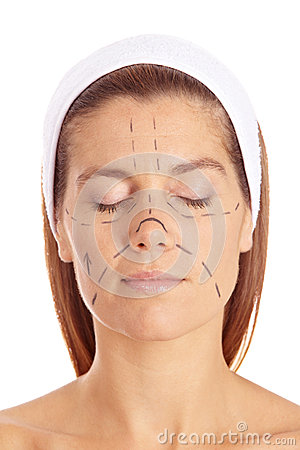Woman before plastic surgery with lines