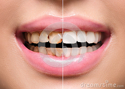 Woman's teeth before and after whitening Stock Photo
