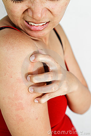 Woman scratch itchy arm