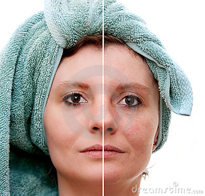 Free Woman With Spotty Skin Royalty Free Stock Photography - 18675777