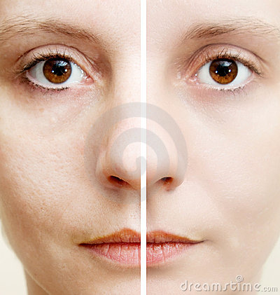 Free Woman With Spotty Skin Royalty Free Stock Images - 18675779