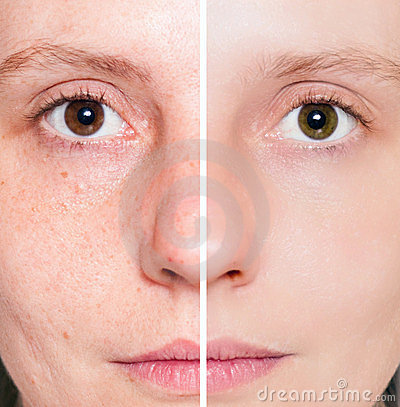 Free Woman With Spotty Skin With Deep Pores Royalty Free Stock Images - 23694929