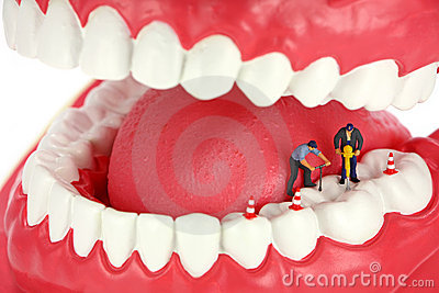 Workers drilling a tooth