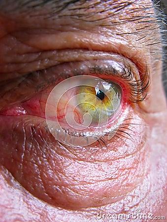 Wrinkled bloodshot eye
