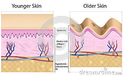 Wrinkled versus smooth skin