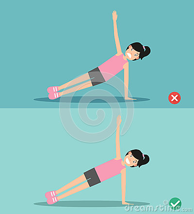 Free Wrong And Right Side Plank Plank Posture,illustration Royalty Free Stock Photo - 76837295