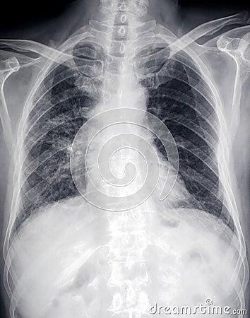 Μπροστινή εικόνα ακτίνας X της καρδιάς και του στήθους