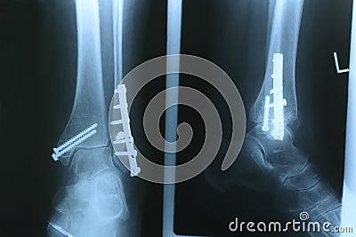 X-ray 02