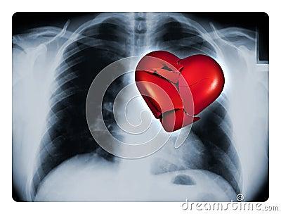 X-Ray Broken Heart