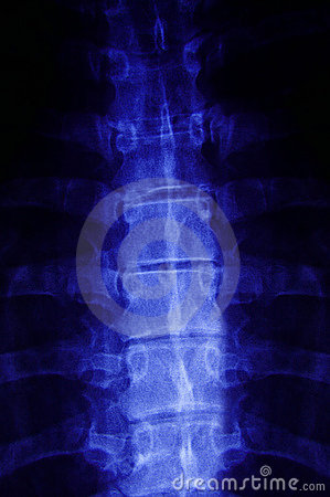 X-ray closeup