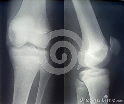 X-ray diagnostics/knee