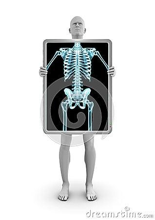 X-ray dude