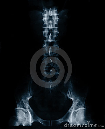 X-RAY film of male lower thorax and pelvis