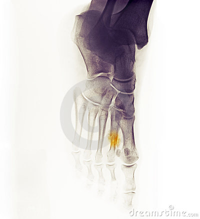 X-ray of the foot showing a healing fracture