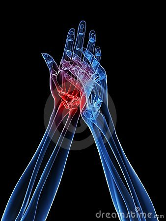 Free X-ray Hands - Arthritis Royalty Free Stock Photos - 12695008