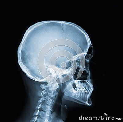 Afbeeldingsresultaat voor x ray head