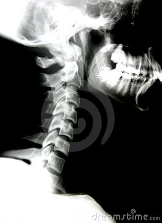 X-ray of head and neck