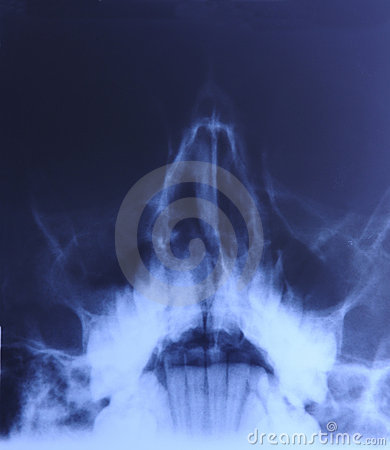 X-ray of head:  Sinusitis
