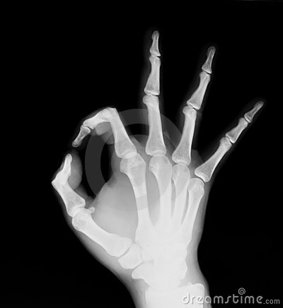 X-ray of human hand (OK!)