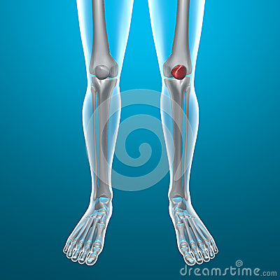 X-ray of human legs, knee