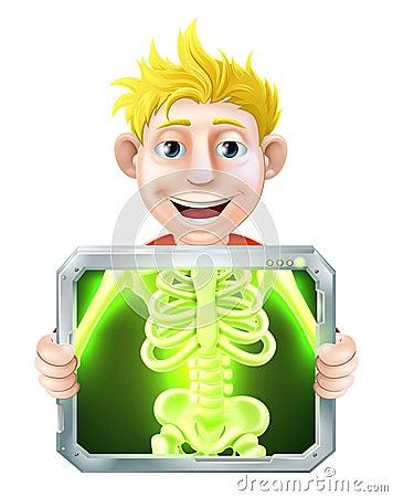 X-Ray Illustration