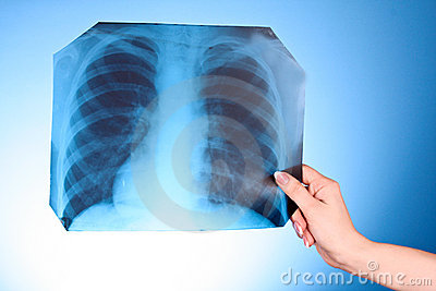 X-Ray Image of chest on blue background