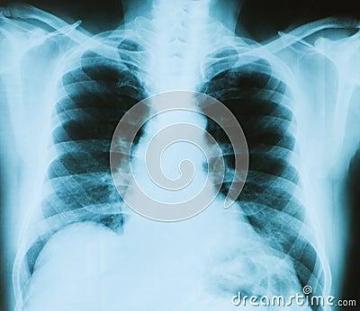 X-ray image of chest bones