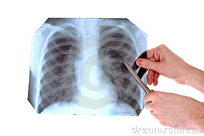 X-Ray Image of chest isolated