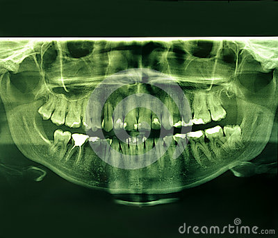 X-Ray image of a human jaw