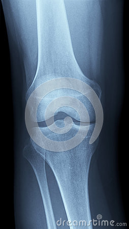 X-Ray image of a knee