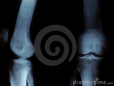 X-ray of the knee-joints