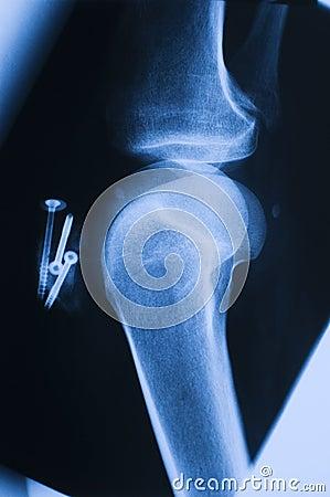 X_ray knee