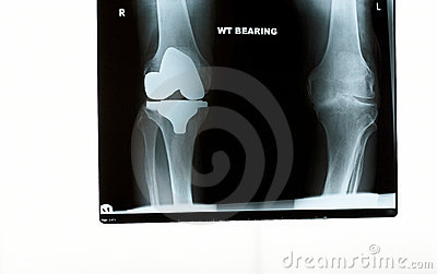An x-ray of the knees