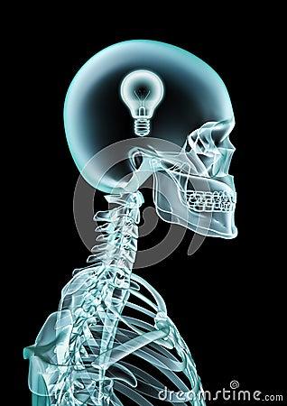 X-ray lightbulb