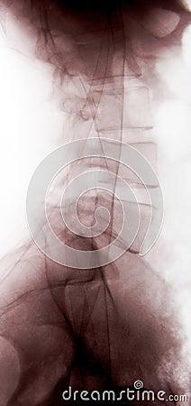X-ray of lumbar vertebrae