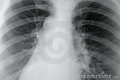 Stock Image: X-ray of the lungs