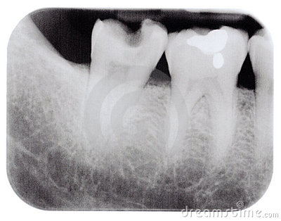 X ray of molars