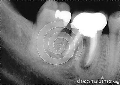 X ray of molars