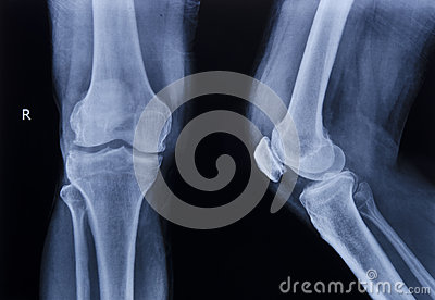 X-ray normal knee
