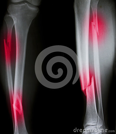 Free X-ray Of Both Human Legs Royalty Free Stock Photography - 49280517