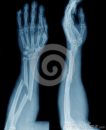 Free X-ray Of Broken Arm Stock Photography - 47702962