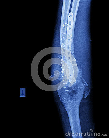Free X-ray Of Broken Arm With Screw Stock Image - 47703931