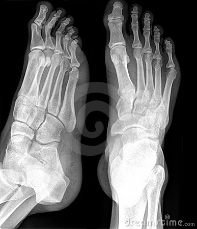 Free X-RAY Of Foot Royalty Free Stock Photo - 11719845
