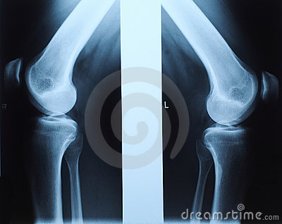 X ray photo of human knee