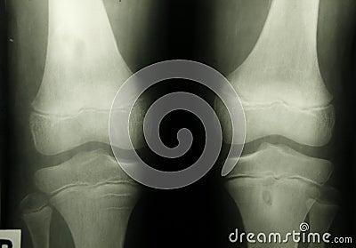 X-ray photo of human knee caps