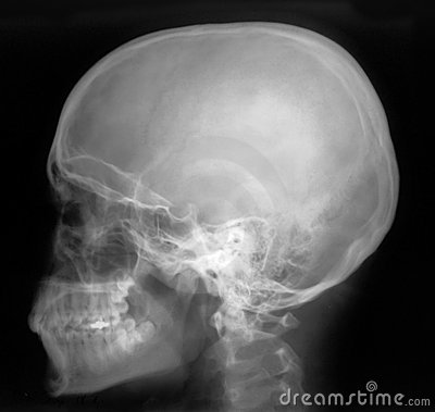 Free X-Ray Profile Royalty Free Stock Photos - 2087358