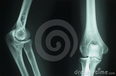 X ray radiography
