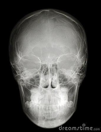 Free X-ray Scull Front Profile Stock Photos - 12676023